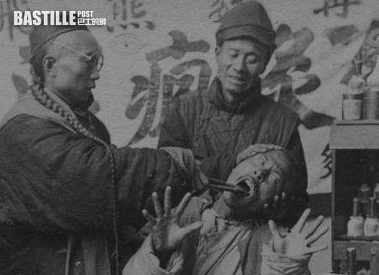 清代街頭牙醫實況 (網上圖片)