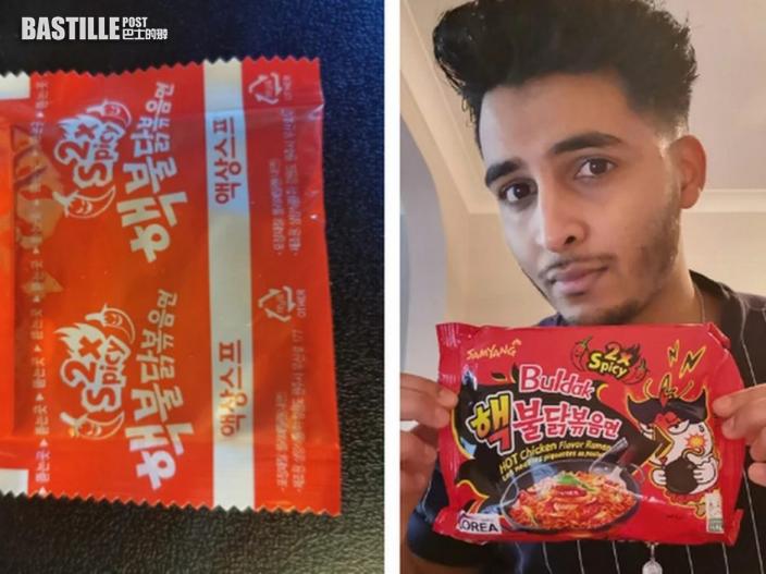 英網紅挑戰韓國辣雞麵 吃半碗手腳麻痺失聰兩天