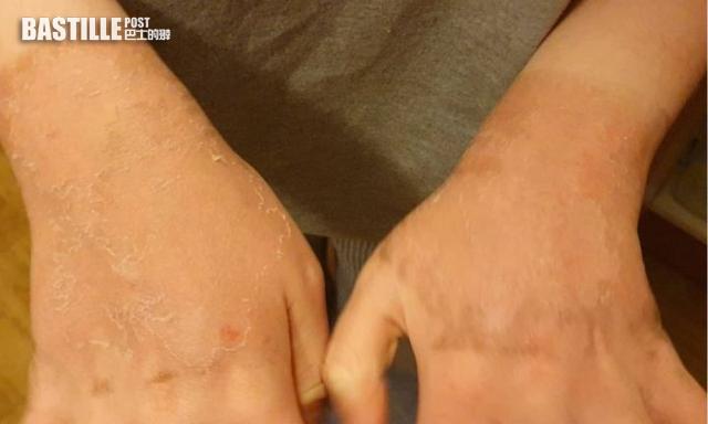 學校水上活動日拒絕提供防曬霜 12歲女一級燒傷