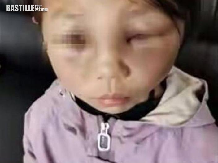 雲南8歲女童遭繼母虐打 雙眼腫脹腳上佈滿淤青
