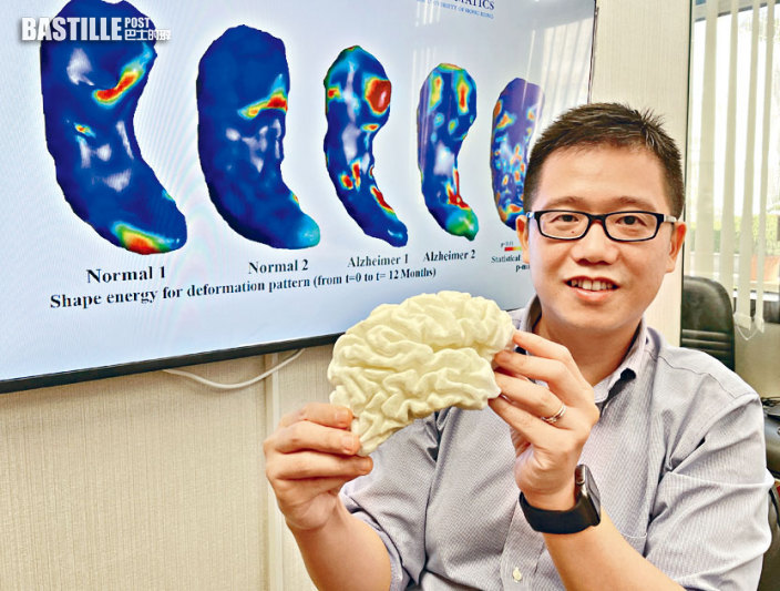 中大研CQC助診斷阿茲海默症