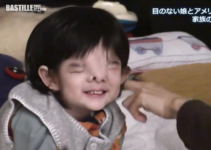女兒先天病患致失去眼球五官扭曲 日籍媽媽度過難關迎愛女18歲生日