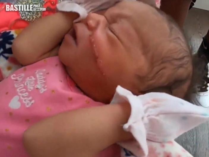 剖腹產嬰臉上留刀痕要縫13針 醫院:離胎盤太近了