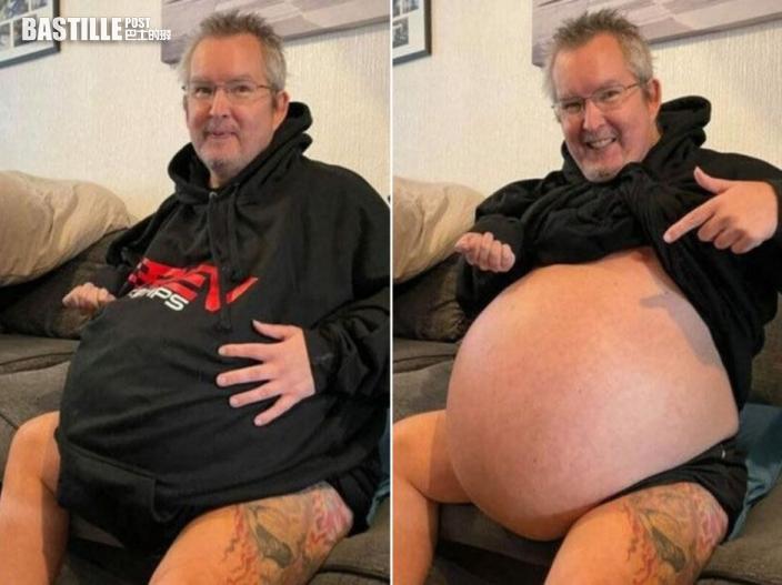54歲男罹患怪病肚大如孕婦 體內40公斤累贅恐壓碎心肺