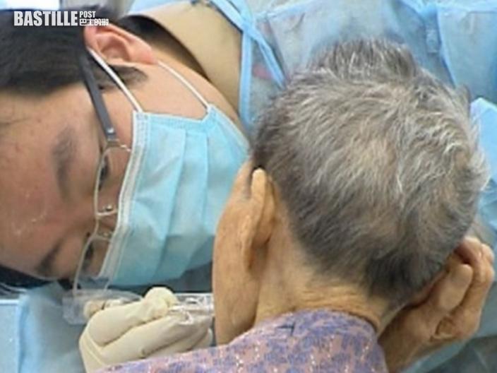 關愛基金擴大長者牙科資助 包括移除牙冠和杜牙根