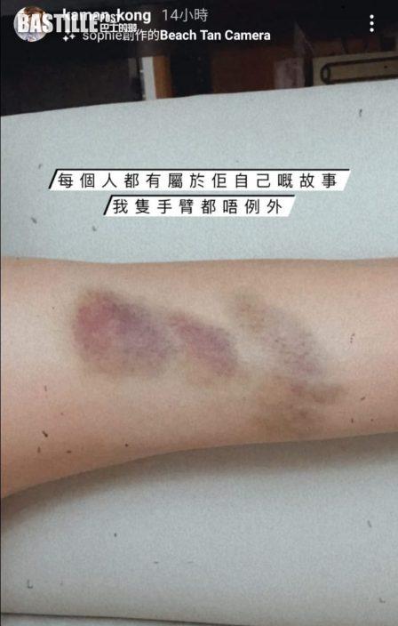 開劇積極減肥練功夫 江嘉敏手臂現瘀痕似被虐