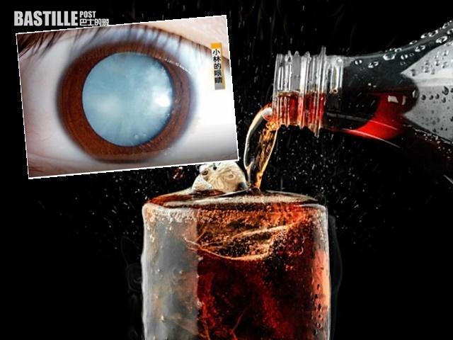 可樂當水飲 15歲少年瞳孔變「淡藍色」恐失明