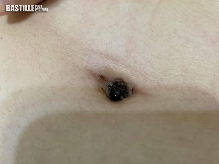 台女彎腰肚痛感異物 挖出陳年酸臭肚臍屎