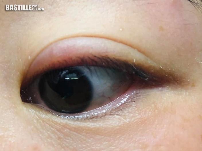 Juicy叮|網民收包裹後捽眼抹汗 致眼皮腫痛起水泡