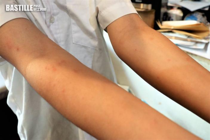 澎湖疑現不明皮膚病 患者出疹勁痕癢